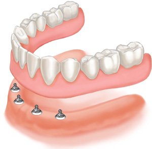 Dentures and Implant Supported Dentures